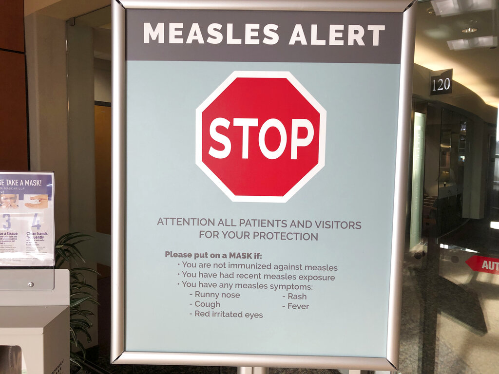 Measles Pacific Northwest