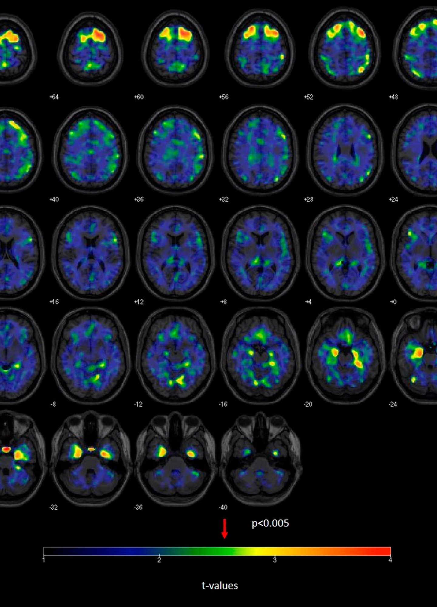 Football Concussions Brain Scans_1554938465187